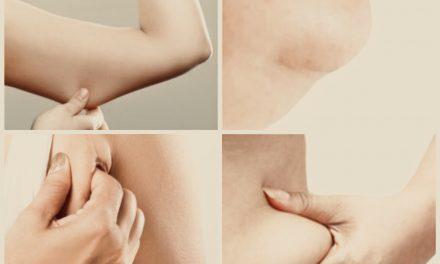 """Ardievu """"peļu vēderiņ""""! Ātra metode, kā tikt galā ar ļenganu ādu un lokālajiem taukiem"""